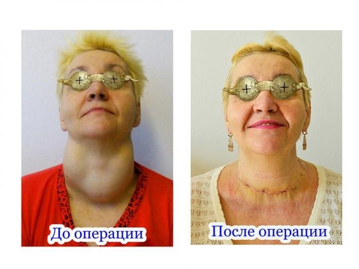 Рудковская сыновьями операция на щитовидке цена даты (расписание