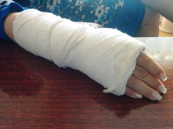 Как сделать чтобы сломала руку
